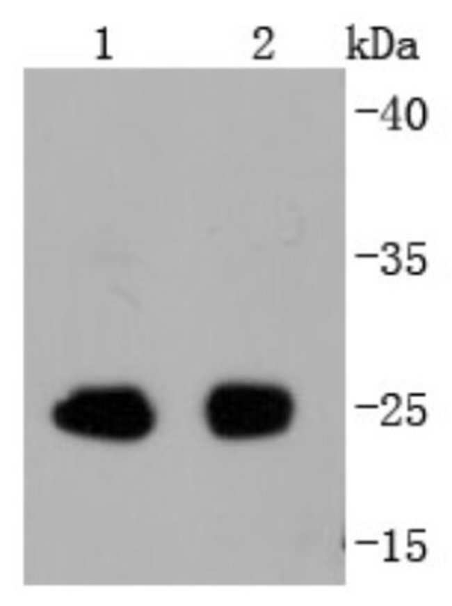 eIF4E (p Ser209) Rabbit anti-Human, Mouse, Rat, Clone: SU0396, Novus Biologicals